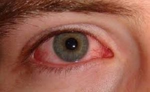 علائم فیزیکی سوء مصرف ماریجوانا